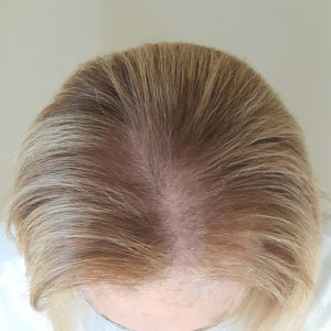 Womens Hair Loss No Product
